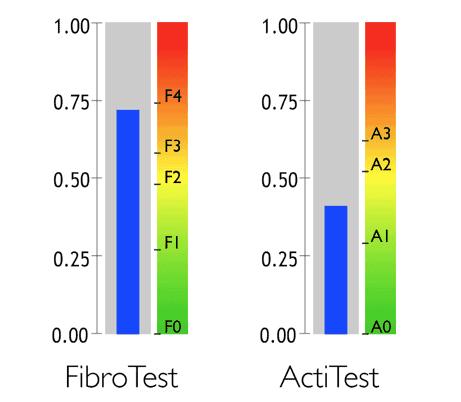 Fibromax резултати - FibroTest ActiTest