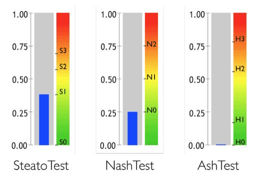 Fibromax резултати - SteatoTest NashTest AshTest