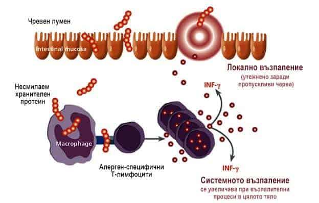 LTT - Хранителните алергии