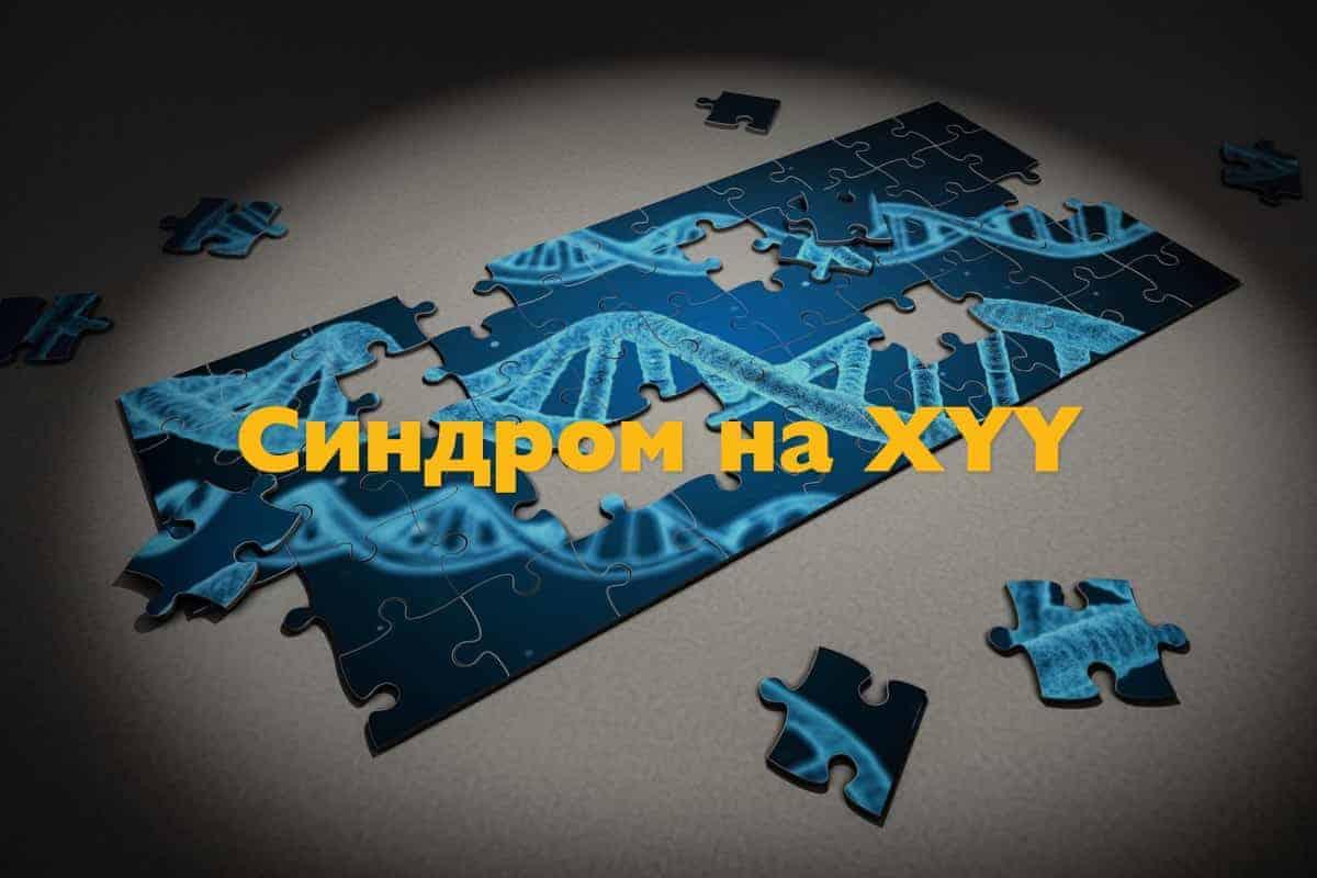 Синдром на XYY